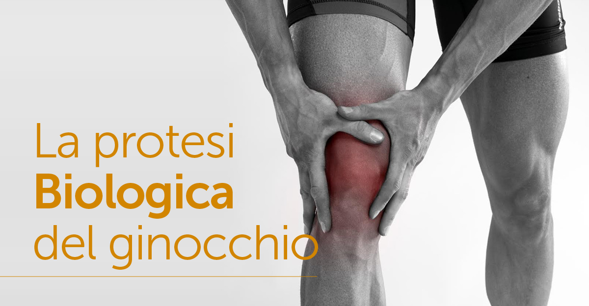 La protesi biologica del ginocchio - Dott. Piernicola Dimopoulos | Medicall